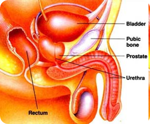 Prostate Infection